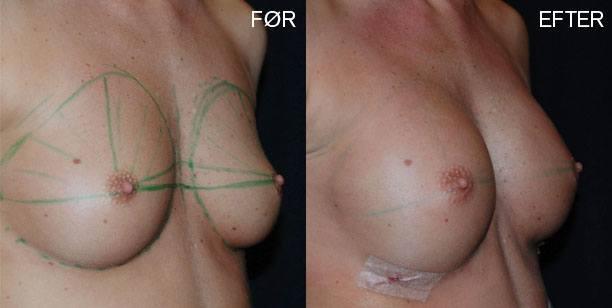 fedttransplantation-bryster-foer-og-efter