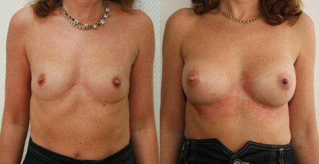 bryst-fedttransplantation-foer-efter-2