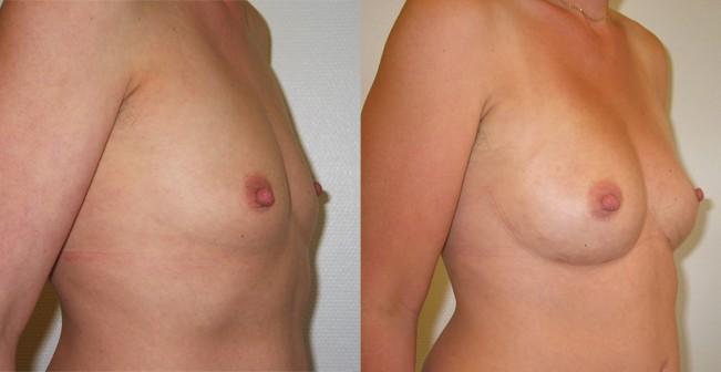 bryst-fedttransplantation-foer-efter