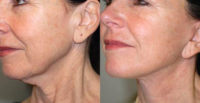 opstramning af hud på hals
