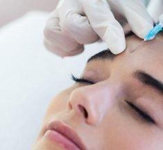 Vil Botox nogensinde gå af mode?