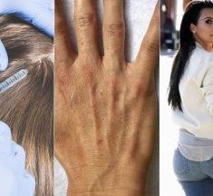 Kosmetiske tendenser i 2019: Opgør med slap hage og rynket hals